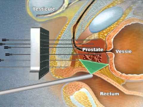 Adenomatöser Prostata Behandlungseinheiten