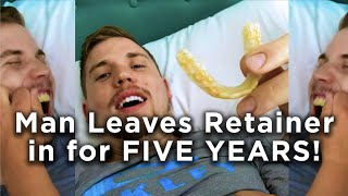 MAN LEAVES RETAINER IN for FIVE YEARS!!