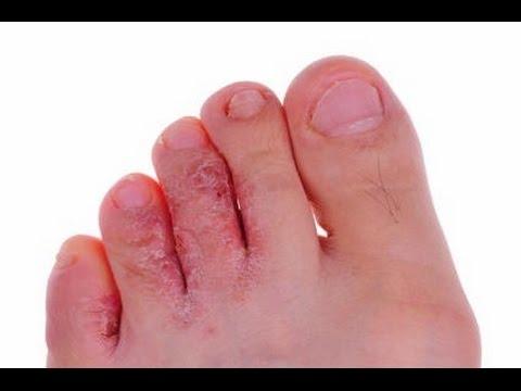 Da un fungo su unghie di gambe ekzoderit il prezzo