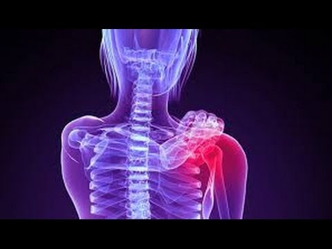 Bóle mięśni z tyłu po prawej