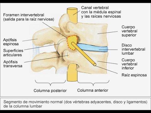 Espasmos de dolor de espalda