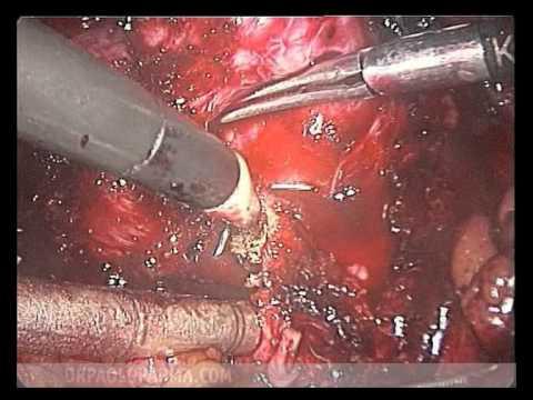 Semi di zucca nel trattamento del cancro alla prostata