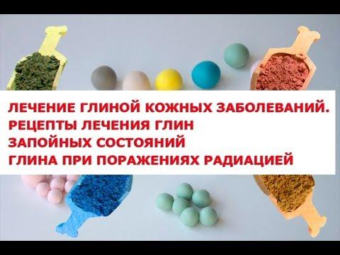 Лечение глиной кожных заболеваний  Рецепты лечения глиной запойных состояний   абстиненции, желчекам