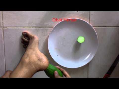 Video Cara Alami Mengobati Kaki kering dan Pecah Pecah