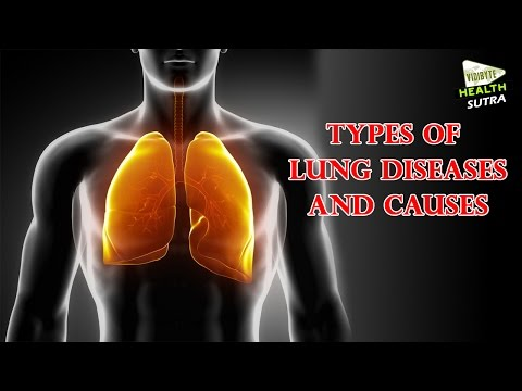Video Types of Lung Diseases and Causes  - Health Sutra