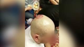 Процедура кровопускания из головы
