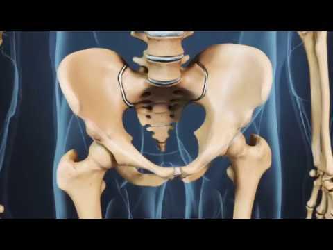 Mal di schiena dopo lintervento chirurgico per le femmine