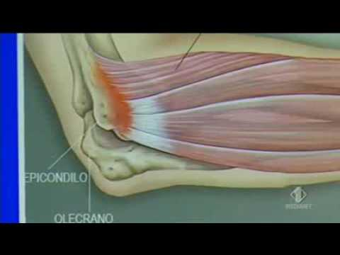 Mettere un colpo per il dolore alle articolazioni