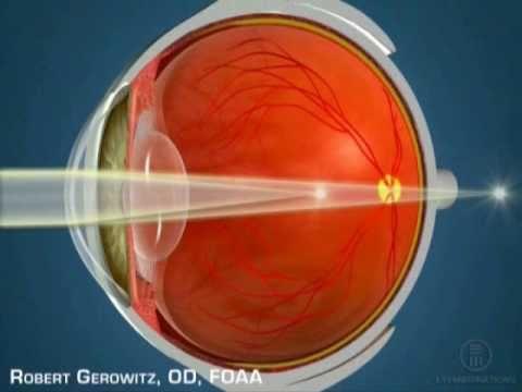 A látásvesztés diagnózisa