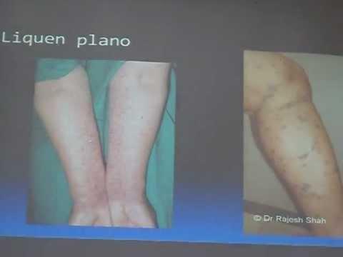 Dermatite di atopic allatto di trattamento di bambini e una dieta