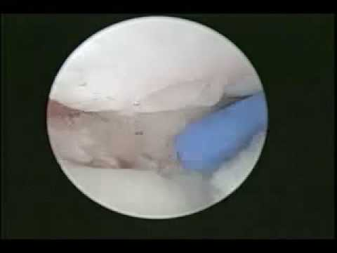 Arthroscopic View of Distal Radius Articular Fracture