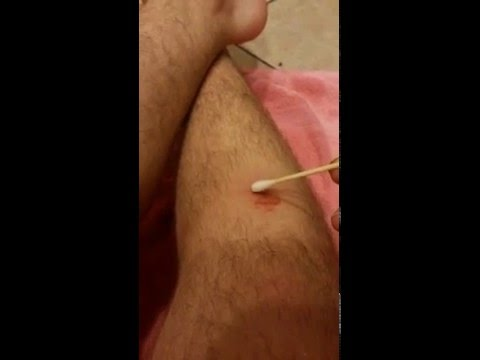 Video HOW TO REMOVE RINGWORM