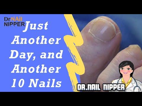 A láb kicsi ízületeinek ízületi gyulladása okozza
