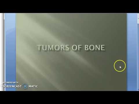 Toracico solletico osteocondrosi in gola