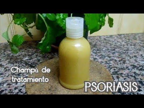 La psoriasis el tratamiento el ungüento akriderm