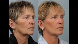 Face and Neck Lift with Liposuction by Dr. Edwin Williams