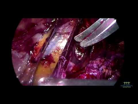 Kerékpározás csípőízület artrózisával