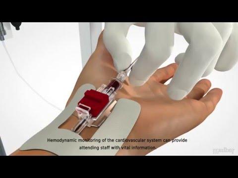 Infúzió magas vérnyomás esetén