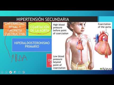 Problema de la hipertensión