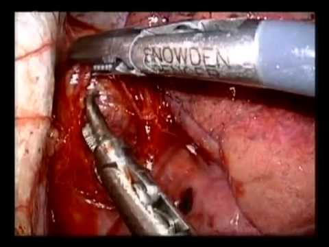 Thoracoscopic Vagotomy