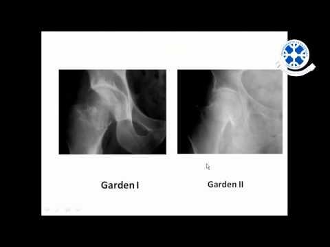 Bloqueo de la cadera intraarticular