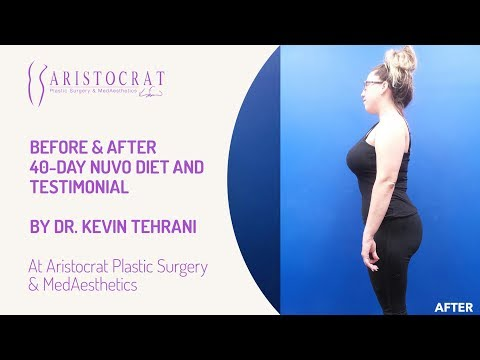 Before & After NUVO Diet Long Island, New York by Dr. Kevin Tehrani