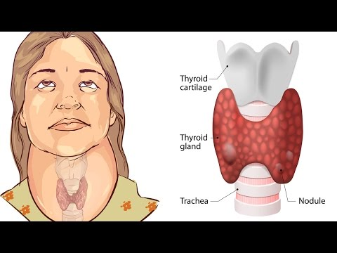 Video 7 Warning Signs You May Have a Thyroid Problem | Natural Cures