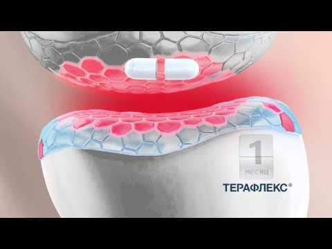 Osteosclerosi della colonna vertebrale cervicale
