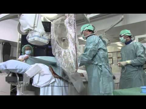 Thrombophlebitis di vene superficiali più in basso