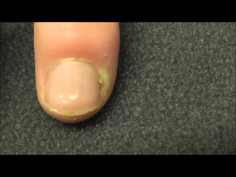 A Finger  Infection Near The Nail Bed Or Paronychia As It Is Called Medically Mp3