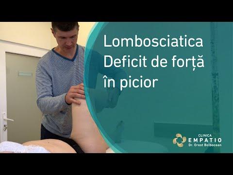 Inflamația articulară cu picioarele plate