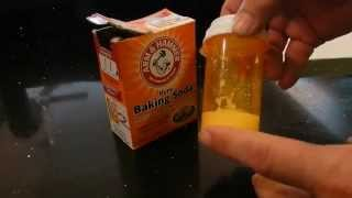 Homemade Anti Itch Cream