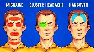 5 Types of Headaches and the Best Ways to Get Rid of Them - Video Youtube