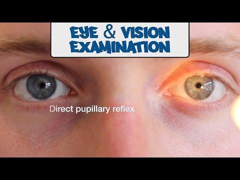 Tratamentul vederii orientale