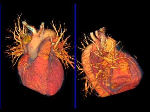 Tensiunii arteriale si dispozitive pentru mii