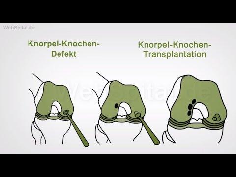 Rückenschmerzen im Lendenwirbelbereich der Wirbelsäule