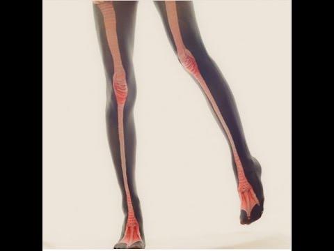 หลอดเลือดดำอักเสบที่ขา