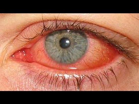 Die Creme unter die Augen von den Kreisen unter den Augen