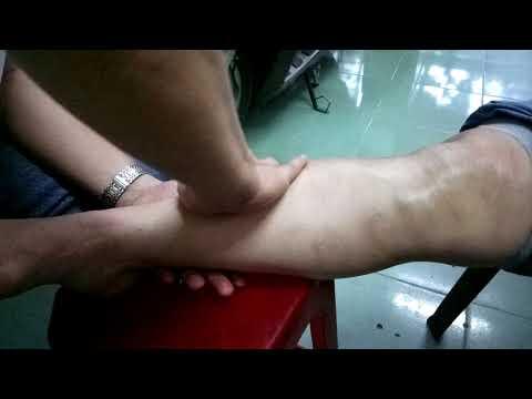 Мастер-класс от доктора Ли. Самостоятельный массаж-поглаживание при варикозе