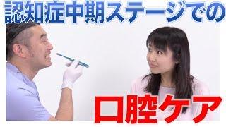 認知症中期ステージでの口腔ケアの特徴