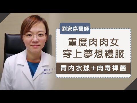 胃鏡減重》胃內水球加胃內肉毒桿菌注射 重度肥胖女穿上夢想的貼身禮服 - 劉家嘉醫師
