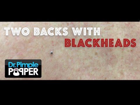 Dr. Pimple Popper Busts Blackheads!