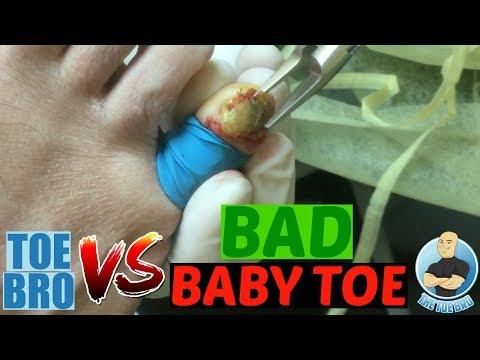 Kung saan inalis toenails apektado ng halamang-singaw