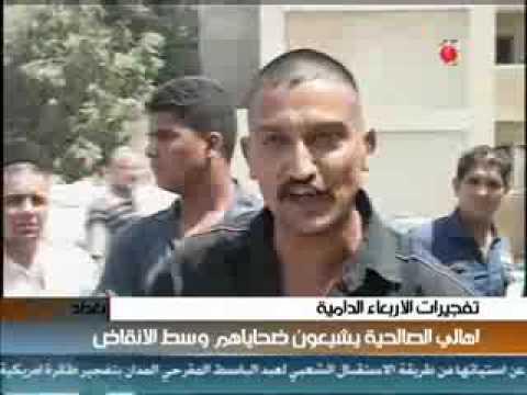 عراقي محروق دمه