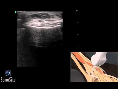3D-пособие: ультразвуковое исследование сухожилия разгибателя голеностопного сустава— SonoSite
