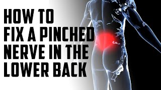How to fix a pinched nerve in the lower back   episode 14