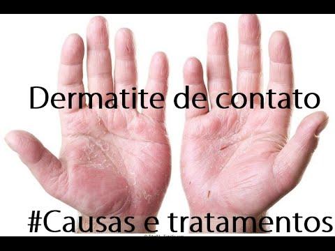 Morte da dermatite atopic