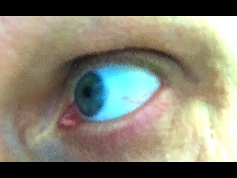 Huwag worm ay maaaring makaapekto sa pagbubuntis