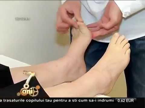 Artrita artroso a articulațiilor mici