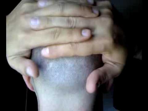 Sinovite del ginocchio è trattato come